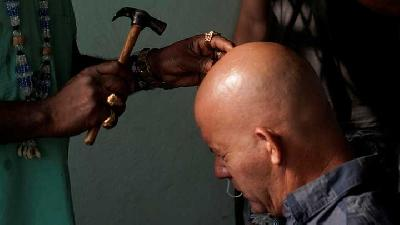 Cuban 'Healer' Performs Surgeries in Havana with a Machete